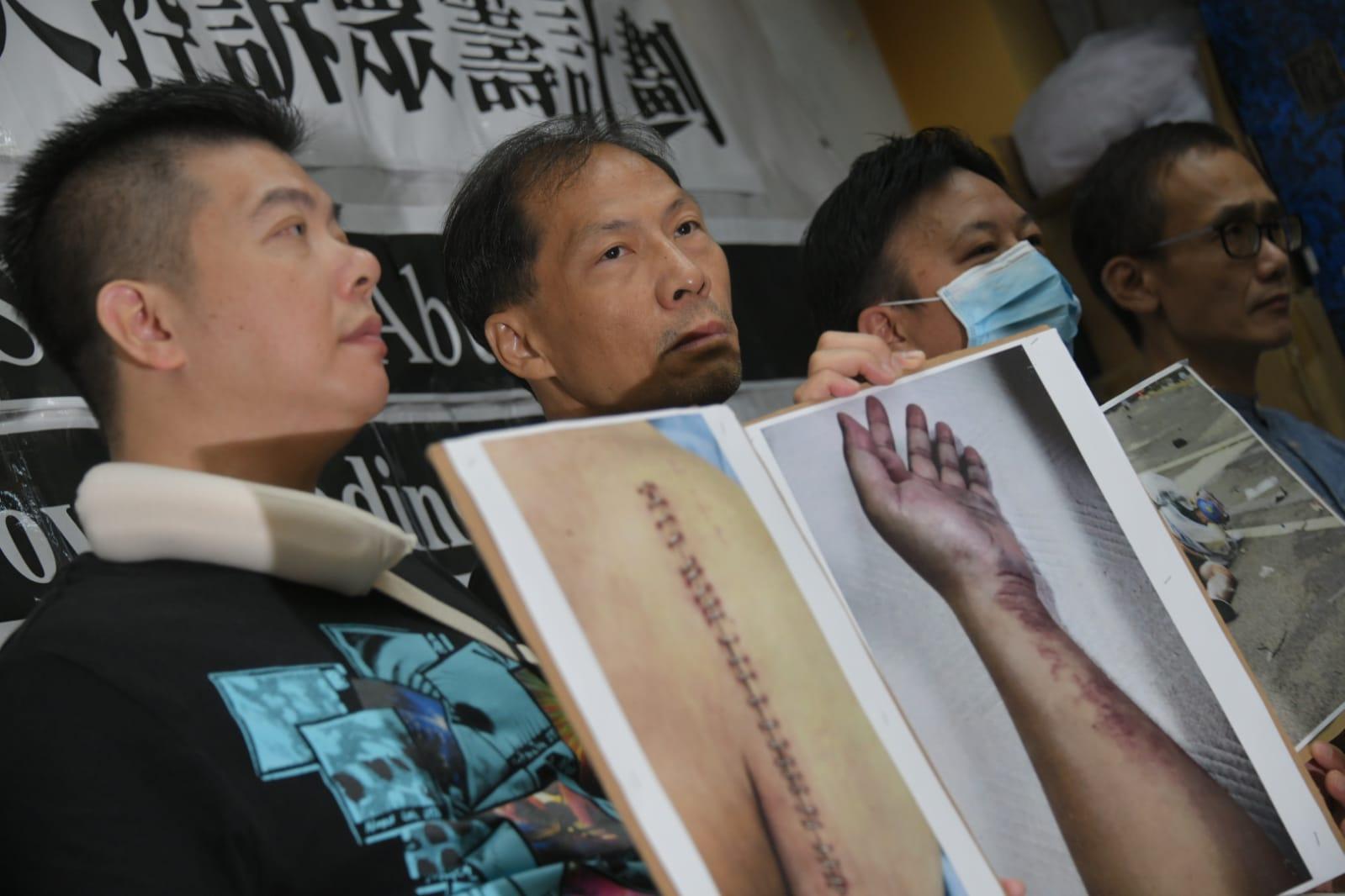 有傷者在記者會上展示受傷相片。