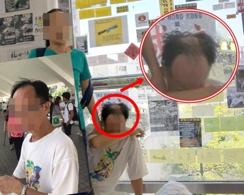馬鞍山「撕紙」中年漢一度傳被剃頭 報警稱疑遭不明液體淋潑