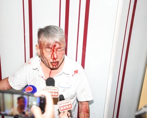【修例風波】元朗最少3漢遭多人圍毆 浴血傷者:打死我啦