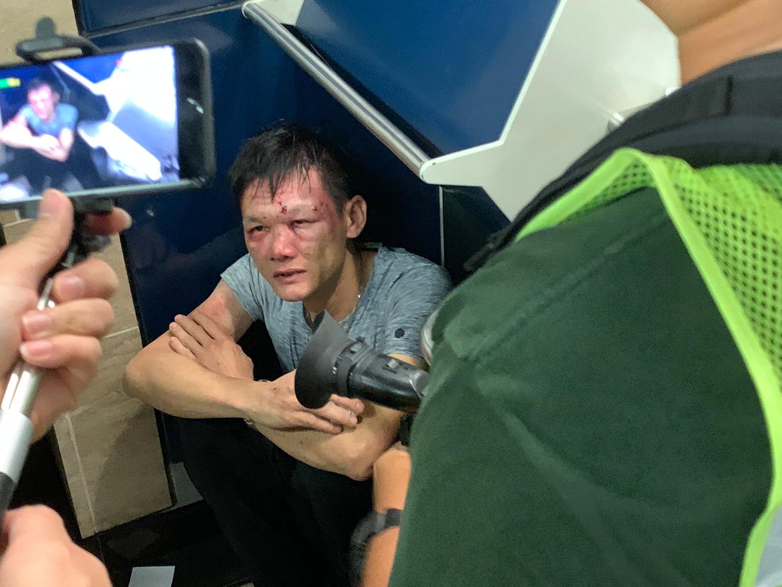 男子被毆致血流披面,坐在一角。