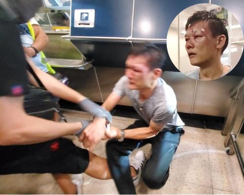 【修例風波】沙田爆毆鬥 男子血流披面遭黑衣人淋水