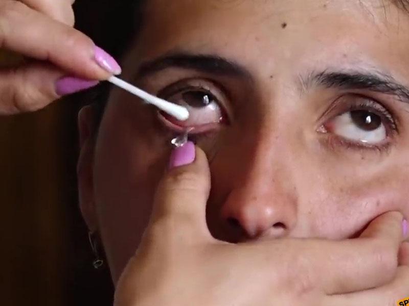 亞美尼亞女子眼中流出眼淚變水晶。(網圖)