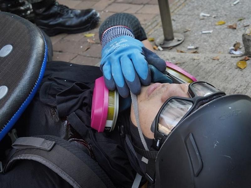 槍傷男示威者。