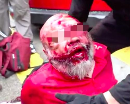 【修例風波】的士疑撞人群釀至少2傷 司機遭圍毆浴血