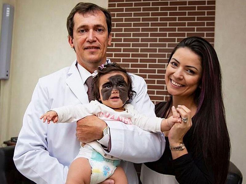 天生面上長了蝙蝠俠眼罩胎記的美國女嬰,赴俄羅斯治療後,順利完成首次手術。(網圖)