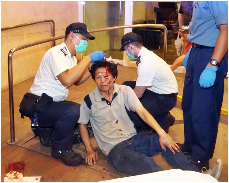 事主頭部受傷,血流披臉。