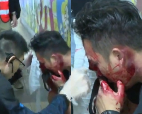 【修例風波】將軍澳黑衣男被圍毆頭破血流 疑為臥底警員袋中有疑似伸縮警棍