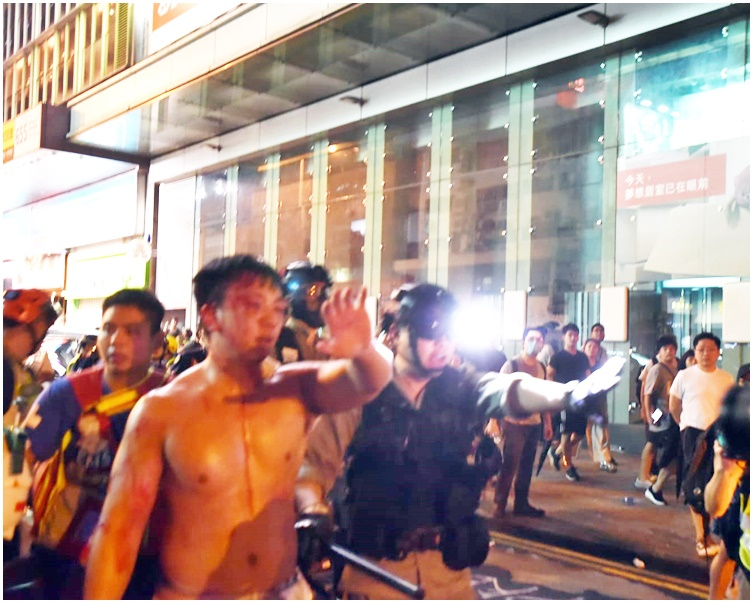 防暴警護送傷者離開。