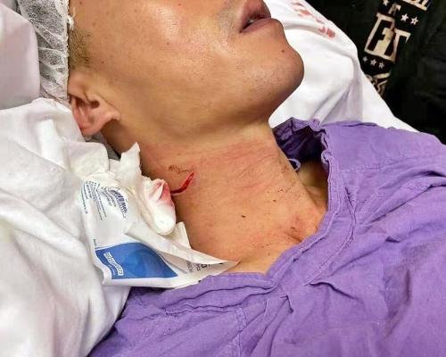 【修例風波】觀塘遇襲警頸靜脈及神經線受傷 經手術駁回
