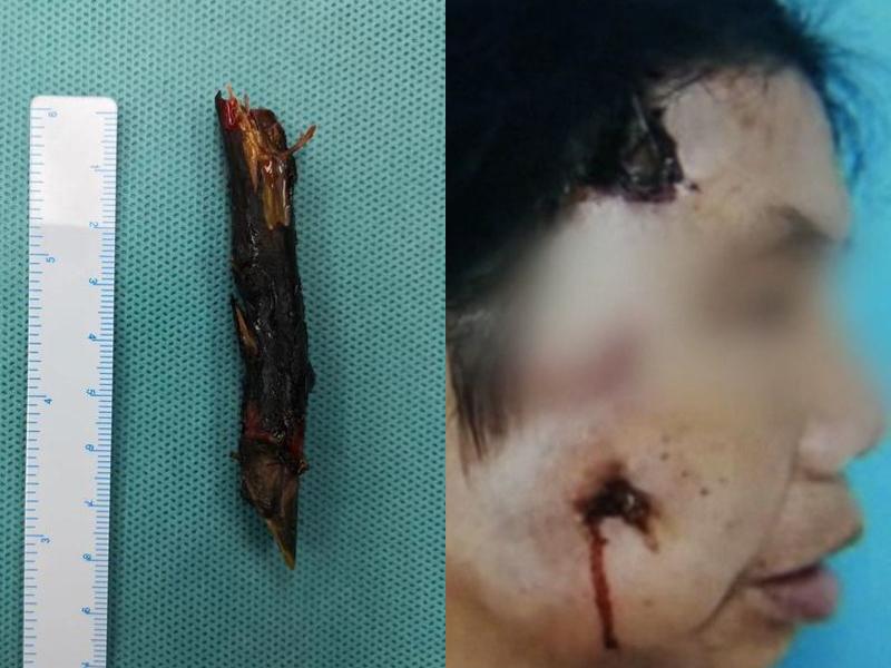 女子右臉流膿,整個爛掉,她面部竟拔出兩年前意外插入的樹枝,足有8cm長。(網圖)