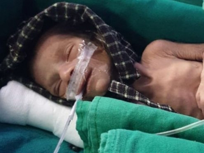 慘遭活埋的女嬰,被喪女的父親挖了出來送院治療,正在慢慢康復。(網圖)