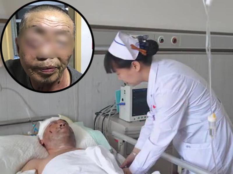 黑龍江護林工被熊襲擊,半邊臉被咬脫,需縫100多針。(網圖)