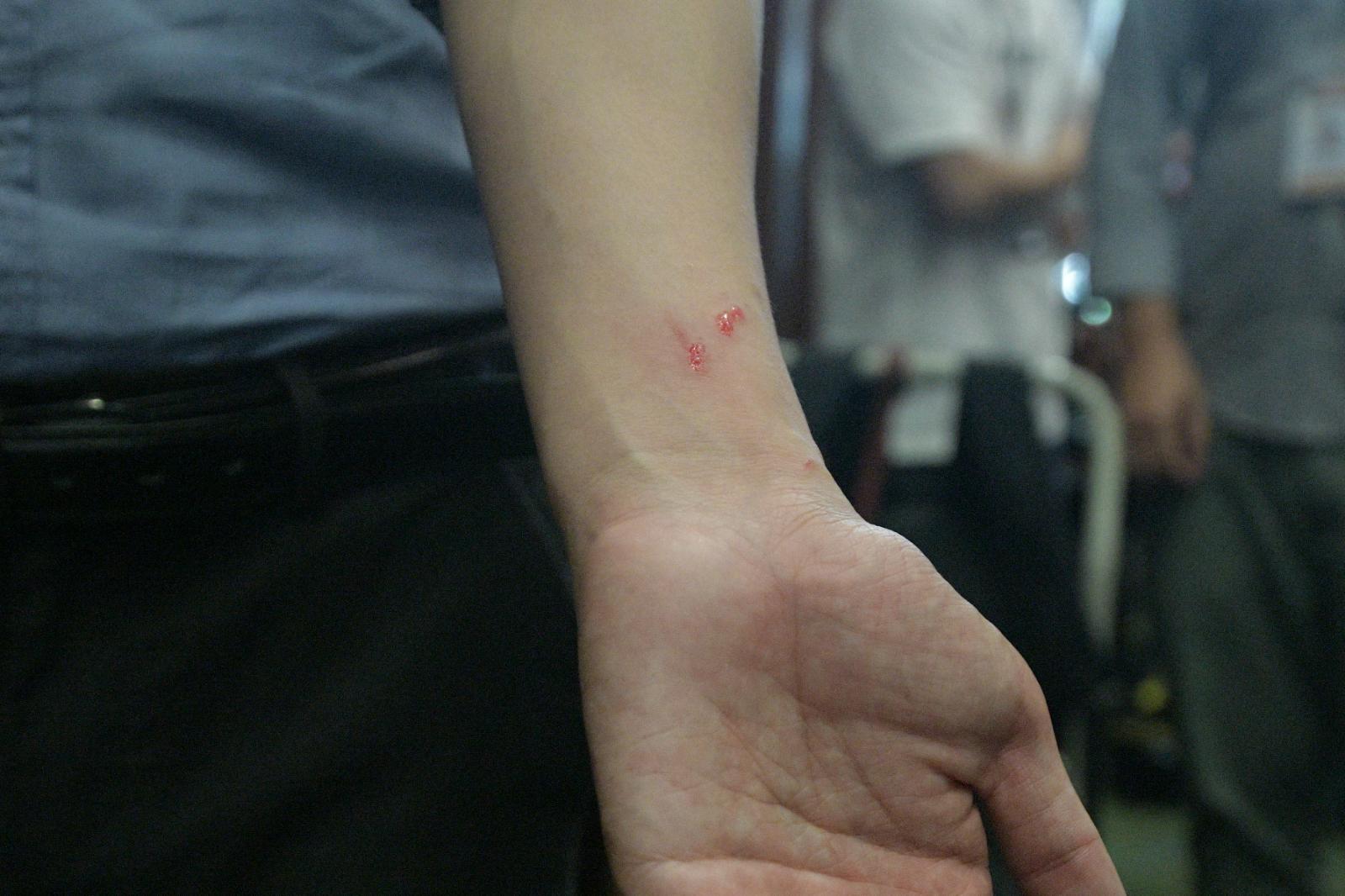 區諾軒稱被抓傷。