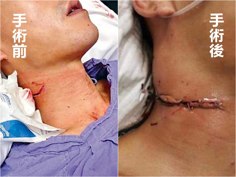 遭割頸警員傷口縫合處理引起網民爭議。網圖