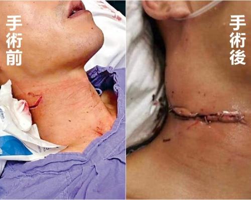 網傳被割頸警術後照惹爭議 醫管局澄清:皮瓣輕微外翻助傷口癒合