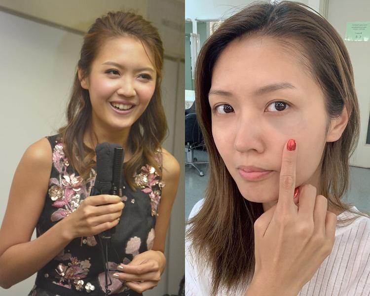 陳庭欣話撞瘀眼後難上妝,化妝同事有微言。