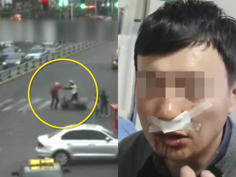 交通警勇救一對老夫妻,因此而被砍傷了嘴唇和鼻子恐會毀容。(網圖)