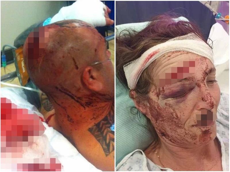 英國一對夫妻被襲擊重傷。網上圖片