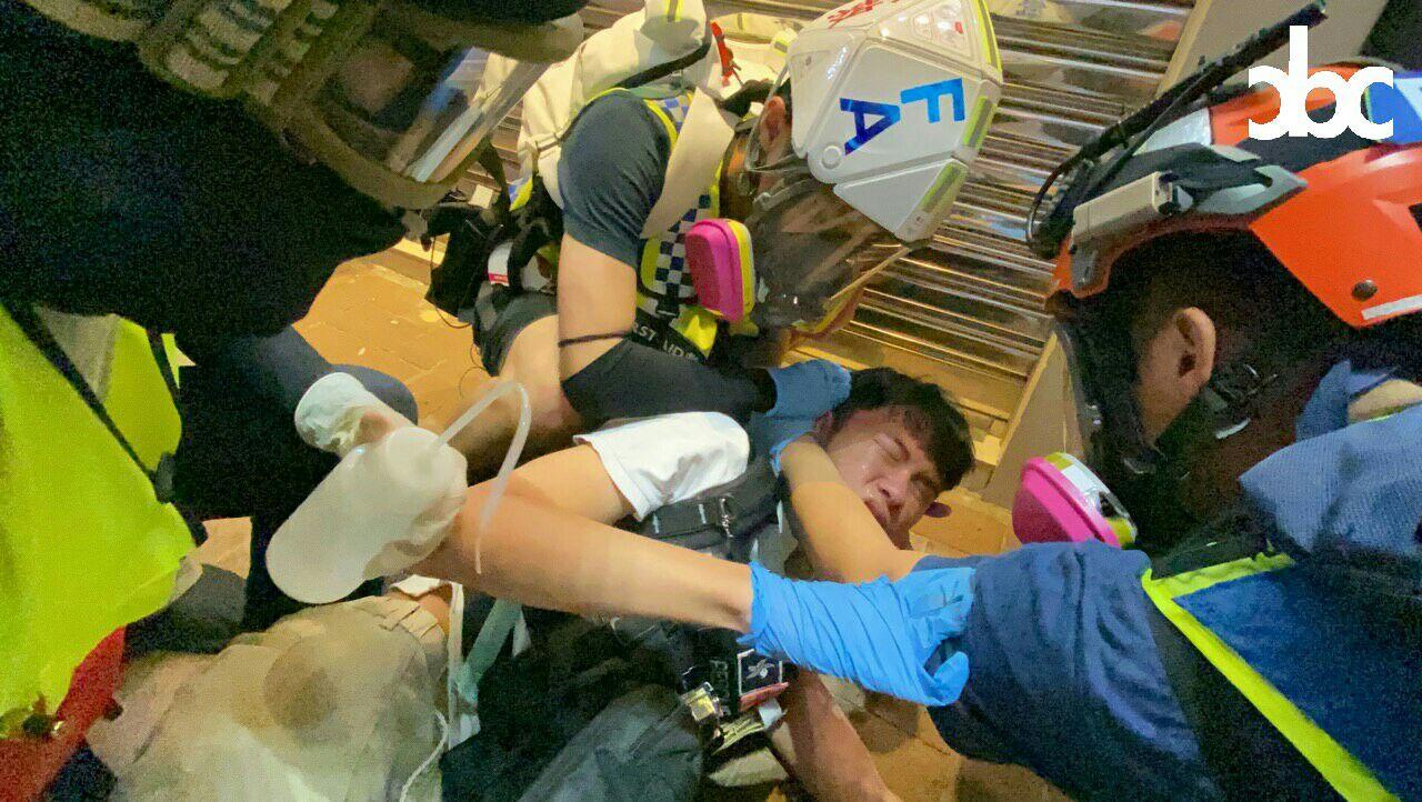 一名急救義工在銅鑼灣被催淚彈灼傷後背。城市廣播圖片