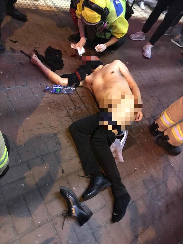 一名男子被毆打倒地。網上圖片