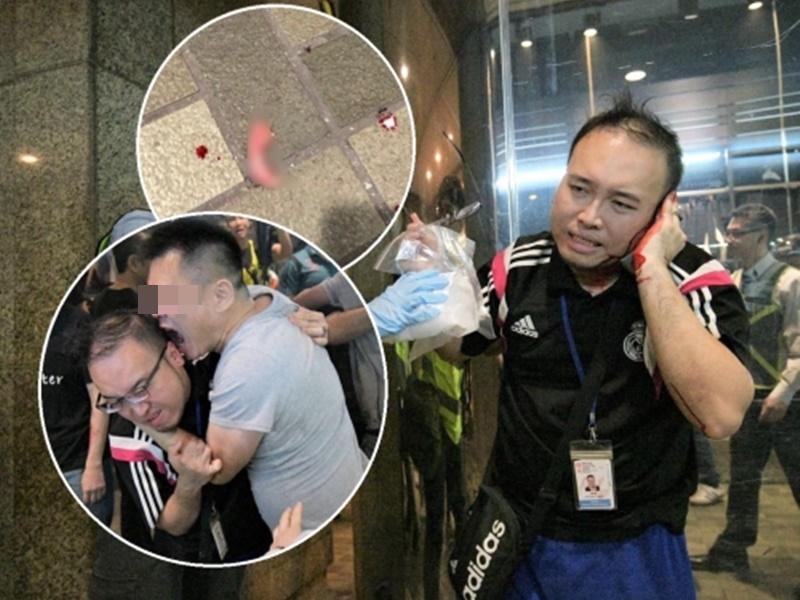 林卓廷指趙家賢已做手術駁回耳朵。資料圖片
