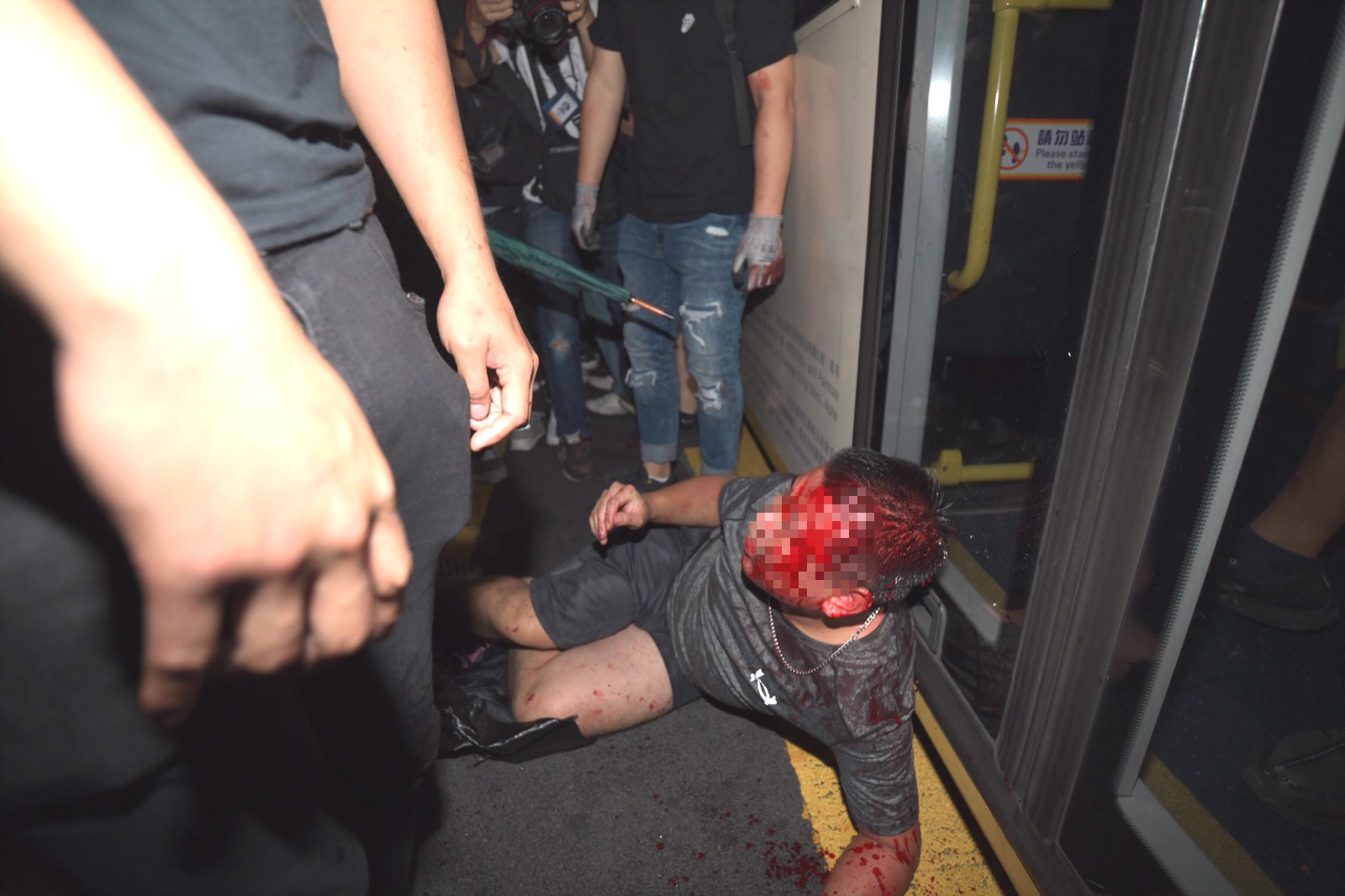 受傷男子倒臥馬路。