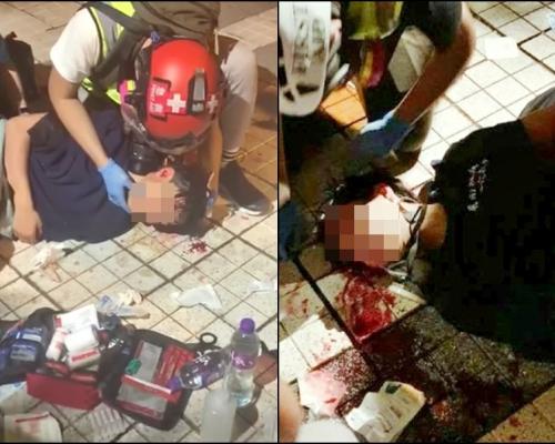 【大三罷】天水圍15歲青年疑遭催淚彈射中頭部 情況危殆