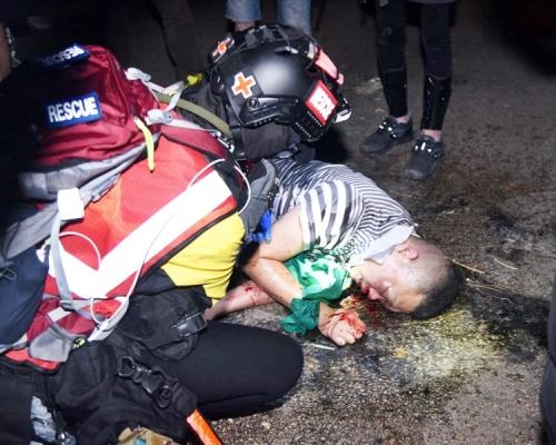【大三罷】旺角中年漢疑遭私了倒地 示威者彌敦道築磚牆堵路