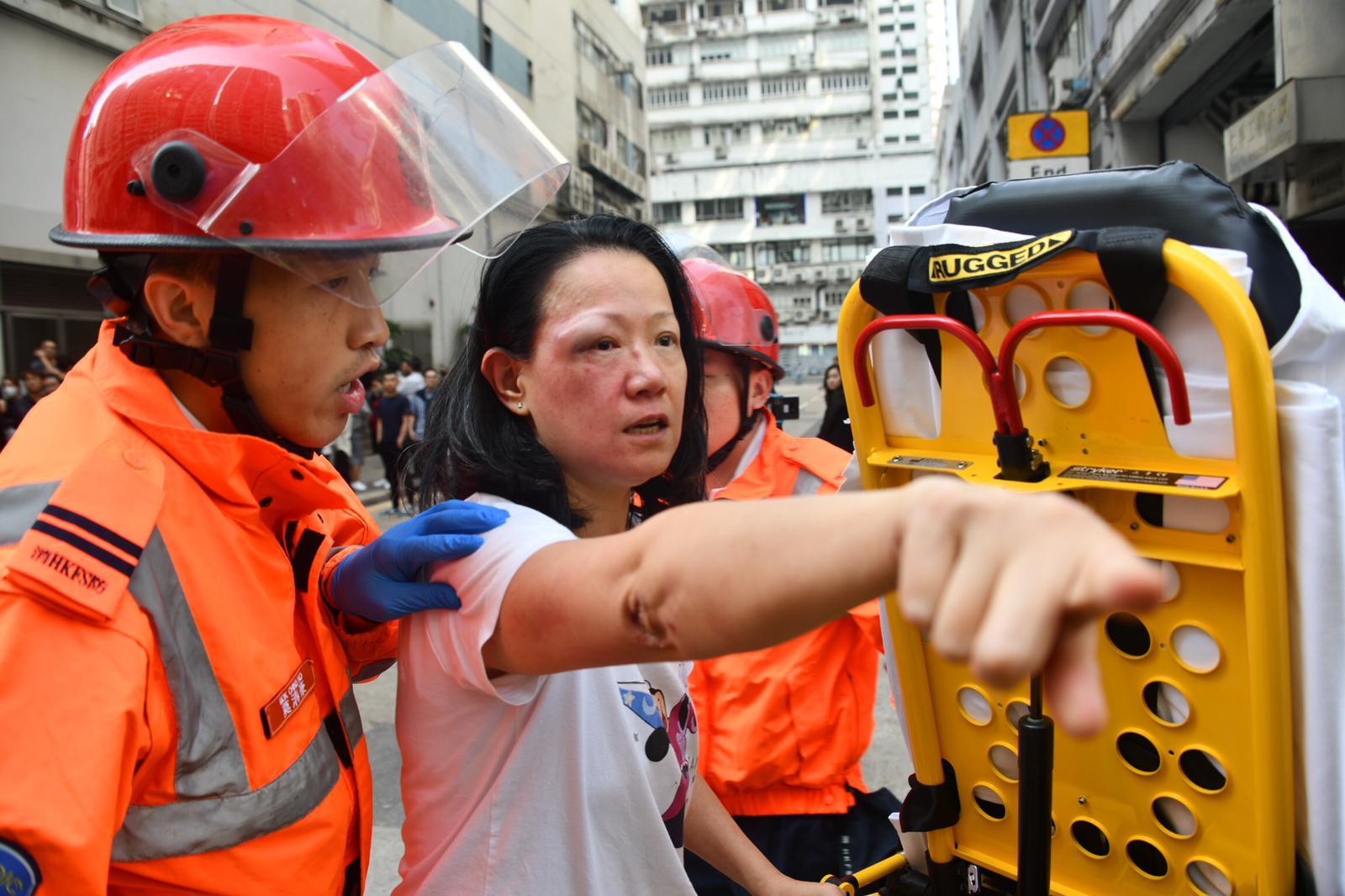 女子被打傷眼角,由救護員送院治理。