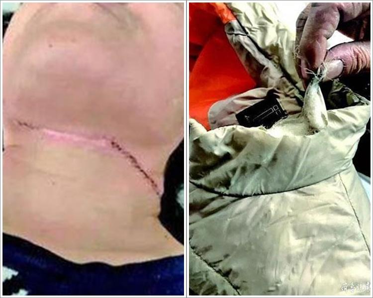 張婦送院頸部縫了30多針。網圖