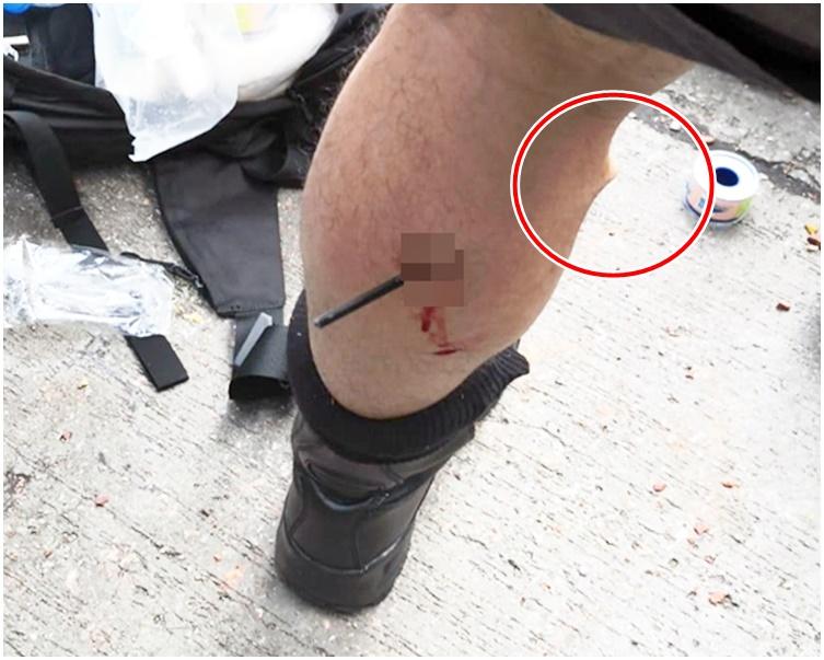 警員被弓箭射中左小腿,金屬箭頭從小腿背後插入,幾乎貫穿(紅圈示)。