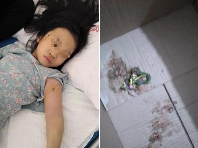 咬了女童一口的毒蛇,是一條20厘米左右的「竹葉青蛇」。(網圖)