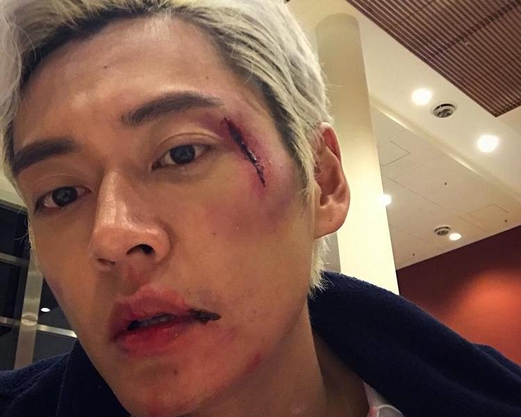 32歲張振朗成日因工受傷!(劇照)