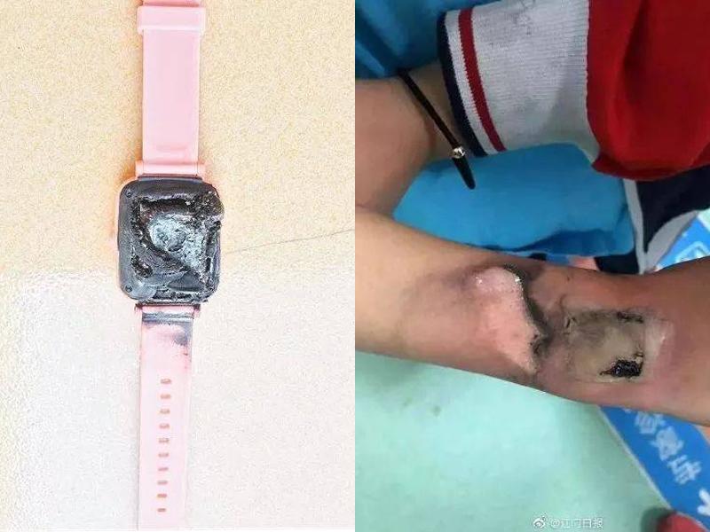 廣東一名小學生的電話手錶突然冒煙自燃,手腕被燙傷。(網圖)