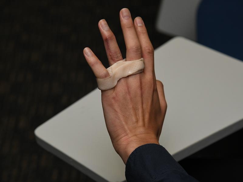 隸屬刑事調查隊的阿包,受訪當日左手仍帶着手箍。