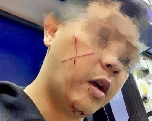 七旬翁上水毁選舉橫額 被捕時反抗休班警臉上打交叉