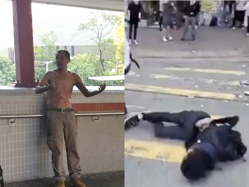 遭燒傷男子(左)及中槍男學生(右)。(資料圖片)