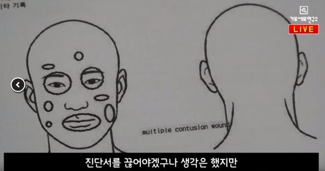 受害人B某於韓國節目《橫豎研究所》騷出當時的醫院診斷書,證實被金健模打致眼眶和鼻骨骨折。