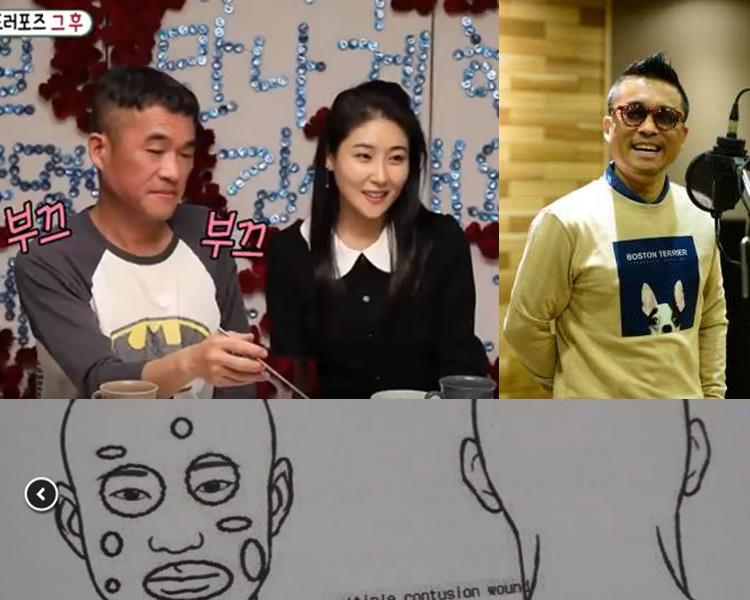新婚的韓星金健模涉性侵後,再被爆毆打女職員致骨折!