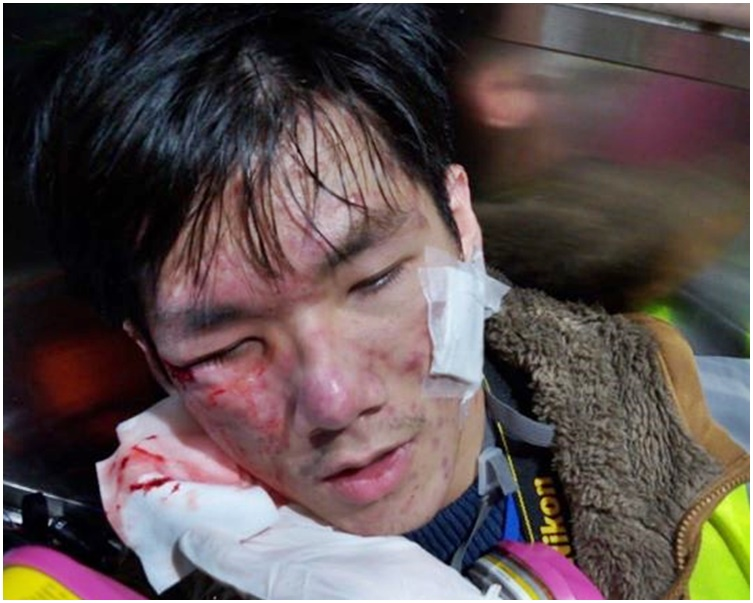 浸大編委會學生記者顴骨受傷,送伊利沙伯醫院治理。浸大編委FB圖片