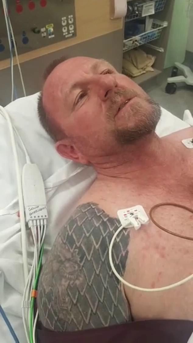 哈里森被毒蛇咬伤,需送院留医。网图