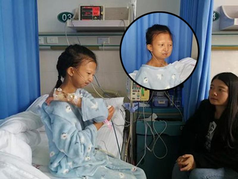 貴州24歲女大生嚴重營養不良過世。(網圖)