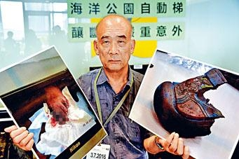 受傷男童祖父展示孫兒傷勢及當日所穿膠鞋。