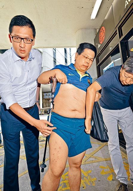 民主黨成員林子健(中)在林卓廷及李卓人攙扶下到瑪麗醫院驗傷。