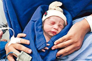 接受捐贈子宮的巴西女子,成功誕下女嬰,創下全球首例。