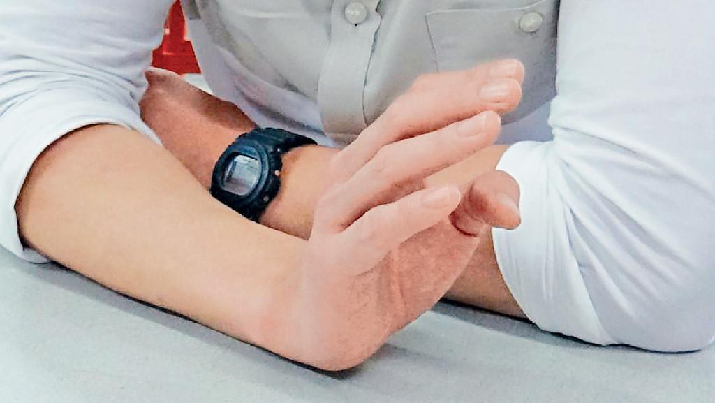 ■右手尾指紅紅腫腫。