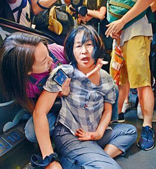 ■蘇婦當日在淘大商場遇襲滾下樓梯受傷甩了三顆牙。