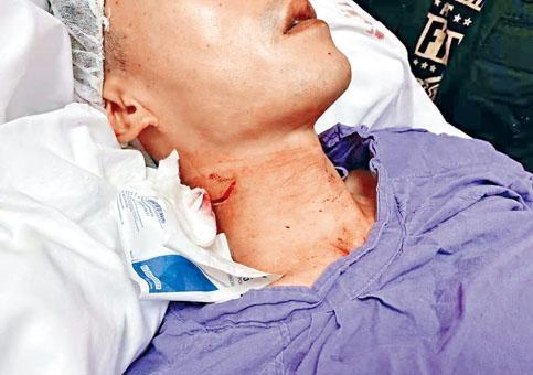 受傷警員頸項可見傷痕。